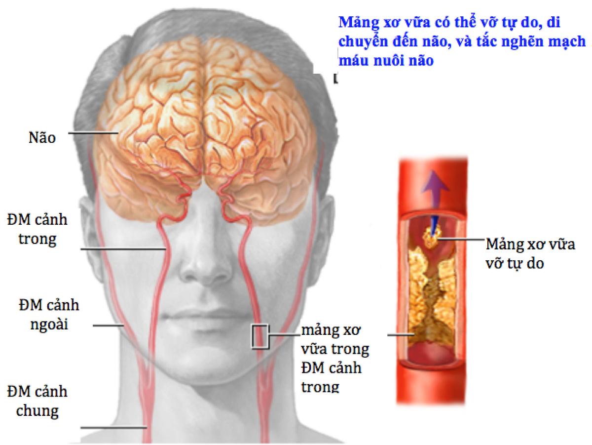 thiếu máu não cục bộ thoáng qua là gì
